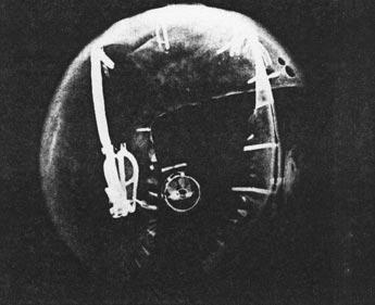 Fig. 5. Radiografía lado derecho de la figura. Fotografía publicada en la obra de D. Wildung, Métamorphoses d'une regine, p. 26.