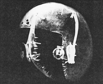 Fig. 6. Radiografía lado izquierdo de la figura. Fotografía publicada en la obra de D. Wildung, Métamorphoses d'une regine, p. 26.