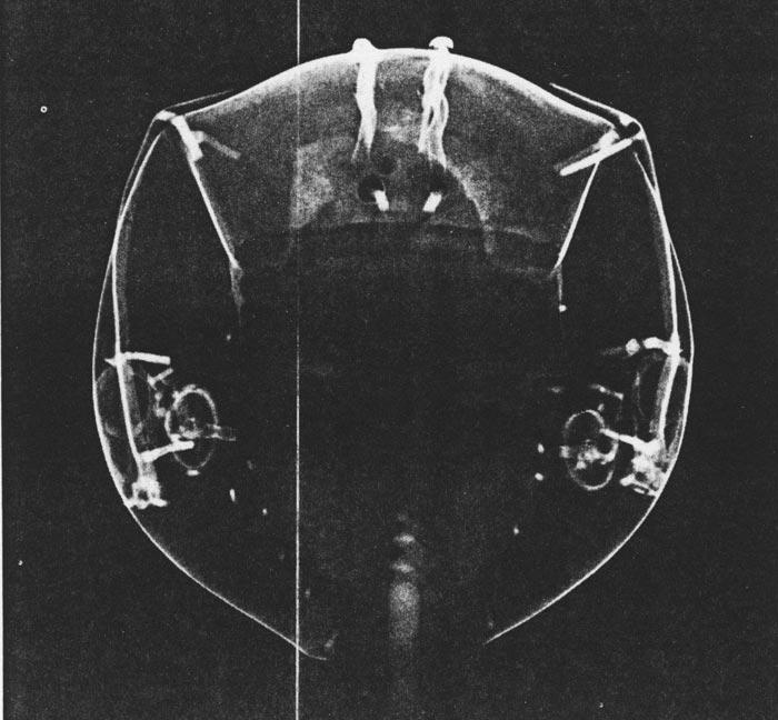 Fig. 7. Radiografía frontal, publicada en la obra de D. Wildung, Métamorphoses d'une regine, p. 19.