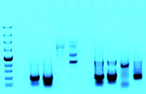 Foto 24 - Electroforesis de fragmentos de ADN amplificados por la reacción en cadena de la polimerasa