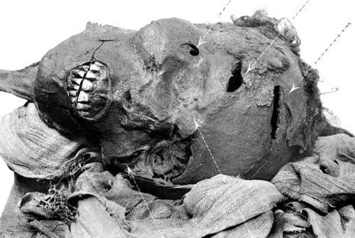 Fig. 1. Cabeza de la momia de Sequenenra Taa II, en la que pueden apreciarse las heridas recibidas en batalla. (Catalogue of the Royal Mummies in the Museum of Cairo).