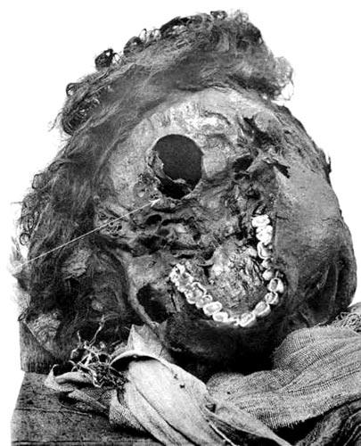 Fig. 2. Vista occipital de la cabeza de Sequenenra Taa II, con la herida posterior indicada. (Catalogue of the Royal Mummies in the Museum of Cairo).
